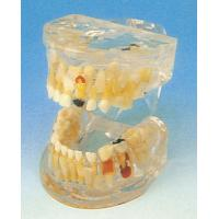 China Human Teeth Model / Lucid Pathology of Milk Teeth Model for Dental Schools Training on sale
