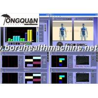 Hot Sale General Body Health Analyzer Eagle eye detector Manufactures