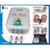 3D NLS biofeedback health analyzer 3d nls health analyzer Manufactures